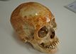 Three-dimensional skull detection、Three-dimensional detection of human skull