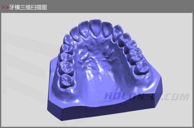 1、案例需求 牙模做逆向设计 定做牙齿 2、面临的问题 传统的义齿加工是由技师根据患者的颌骨形态靠经验手工制作出来的,由于精度无法达到要求,制作出来的义齿存在不可避免的误差,精度难以保障。 3、解决方案 华朗三维精密型三维扫描仪可快速获取高精度牙齿的三维数据,结合数控加工设备直接将牙齿模型制作出来,完全解决了传统工艺的误差问题,彻底改进传统牙齿的修复过程,大幅度缩短义齿的设计制作周期并有效提高精度。